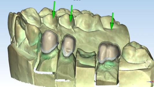 Image for Ortho Studio Dental Restoration  Basic Module