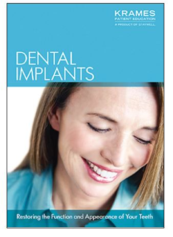 Image for Understanding  Dental Implants